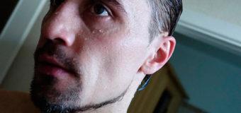 Дима Билан рассказал о причинах своей пугающей худобы. Фото