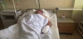 В Одессе сломали ребра нардепу