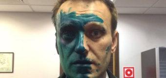 Нападение с зеленкой в Москве: Навальный получил химический ожог глаза