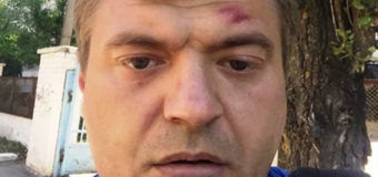 В Херсоне вновь избили скандального журналиста
