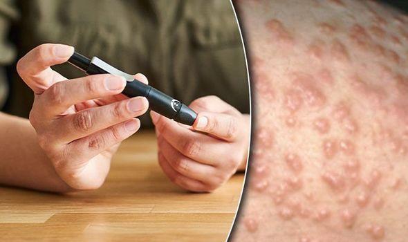 Медики: О диабете можно узнать по состоянию кожи