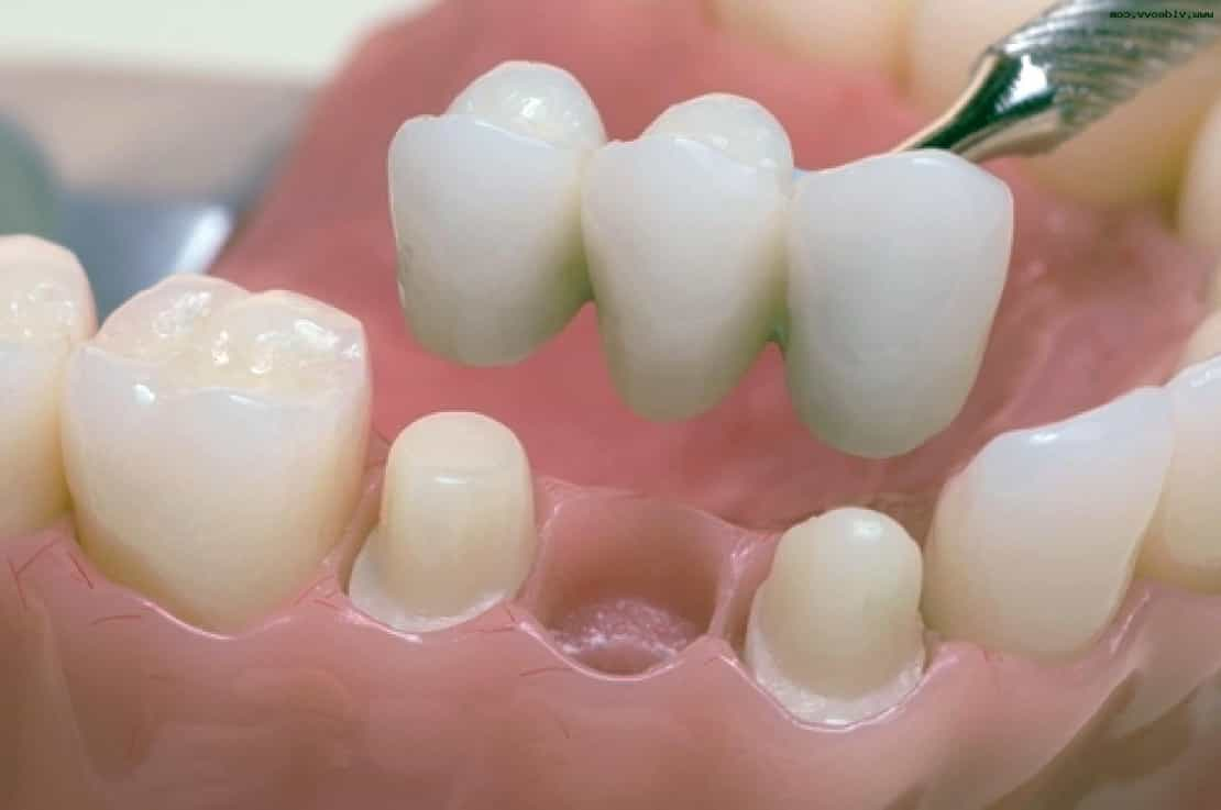 протез жевательного зуба